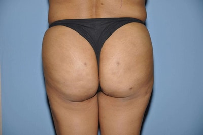 Brazilian Butt Lift Gallery - Patient 6389575 - Image 2