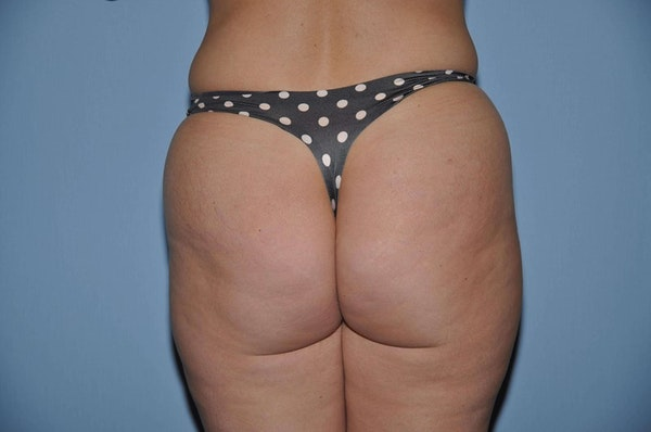 Before and After Brazilian Butt Lift in Long Island