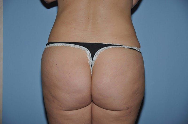 Brazilian Butt Lift Gallery - Patient 6389576 - Image 2
