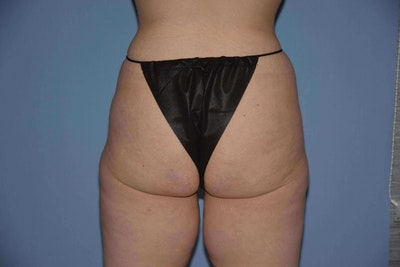 Brazilian Butt Lift Gallery - Patient 6389578 - Image 1