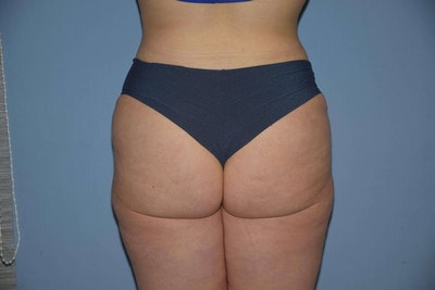 Brazilian Butt Lift Gallery - Patient 6389578 - Image 2