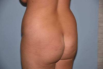 Brazilian Butt Lift Gallery - Patient 6389580 - Image 1