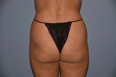 Brazilian Butt Lift Gallery - Patient 6389581 - Image 1