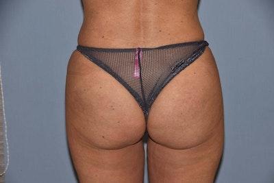Brazilian Butt Lift Gallery - Patient 6389581 - Image 2