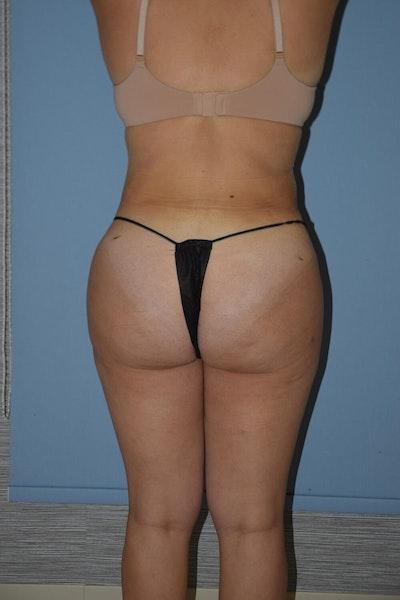 Brazilian Butt Lift Gallery - Patient 6389583 - Image 2