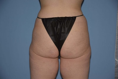 Brazilian Butt Lift Gallery - Patient 6389584 - Image 1