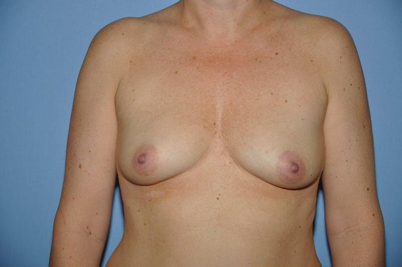 Mommy Makeover Gallery - Patient 6389592 - Image 1