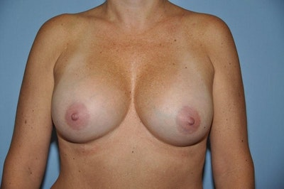 Mommy Makeover Gallery - Patient 6389592 - Image 2