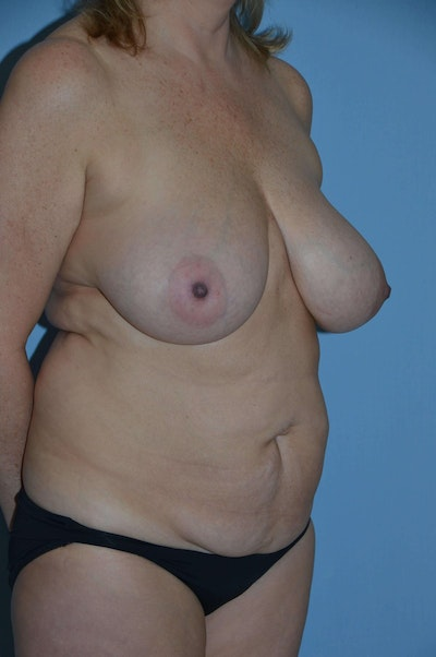 Mommy Makeover Gallery - Patient 6389596 - Image 1
