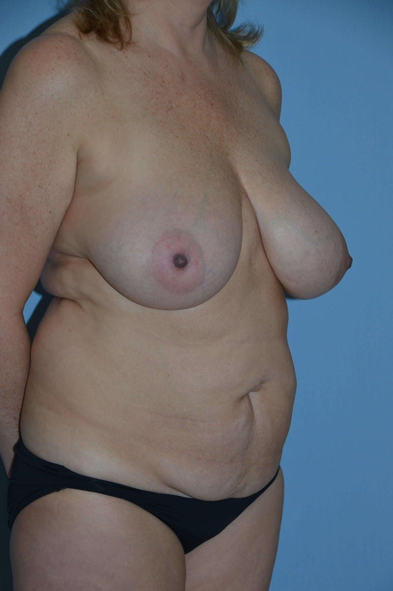 Mommy Makeover Gallery - Patient 14281461 - Image 1