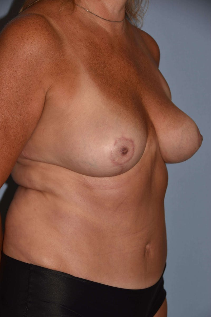 Mommy Makeover Gallery - Patient 14281461 - Image 2