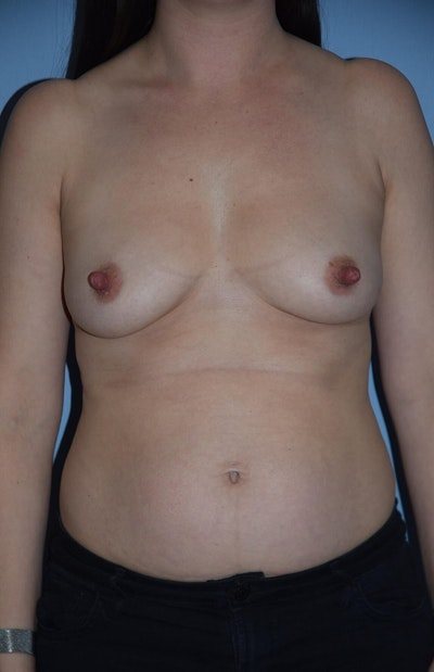 Mommy Makeover Gallery - Patient 6389598 - Image 1