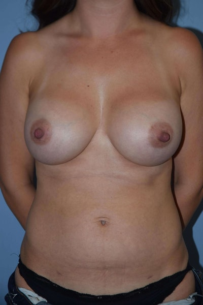 Mommy Makeover Gallery - Patient 6389598 - Image 2