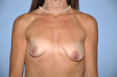 Mommy Makeover Gallery - Patient 6389608 - Image 1