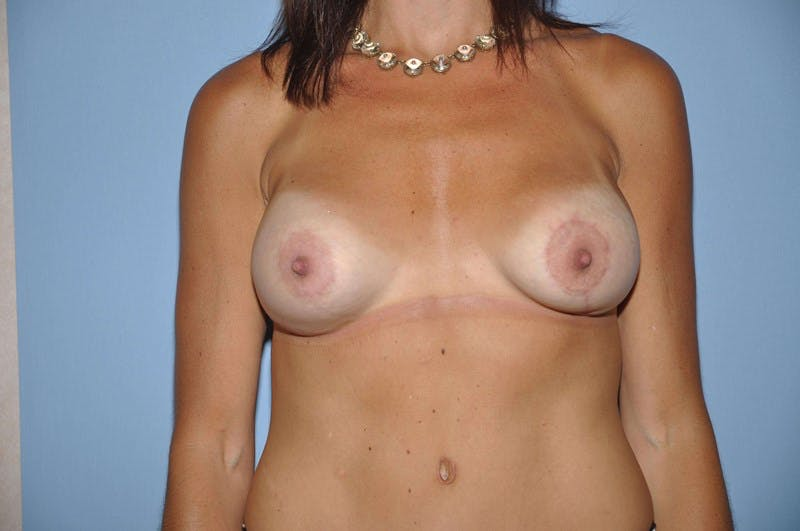 Mommy Makeover Gallery - Patient 6389608 - Image 2
