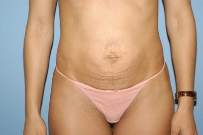 Mommy Makeover Gallery - Patient 6389611 - Image 1