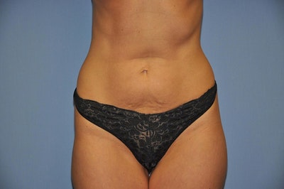 Mommy Makeover Gallery - Patient 6389612 - Image 1
