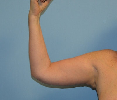 After Weight Loss Surgery Gallery - Patient 6389616 - Image 2
