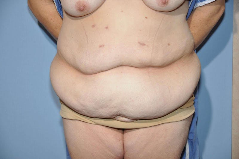 After Weight Loss Surgery Gallery - Patient 6389619 - Image 1