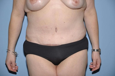 After Weight Loss Surgery Gallery - Patient 6389619 - Image 2