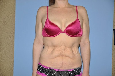 After Weight Loss Surgery Gallery - Patient 6389622 - Image 1