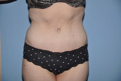 After Weight Loss Surgery Gallery - Patient 6389622 - Image 2