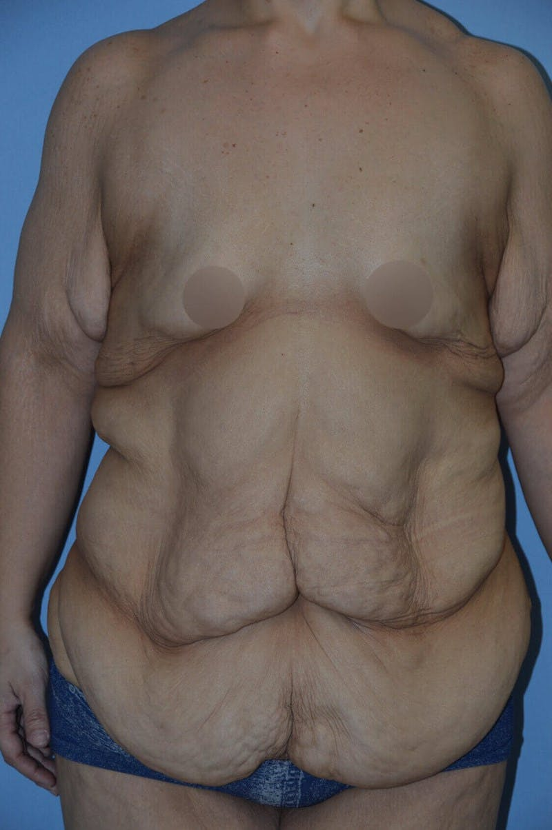 After Weight Loss Surgery Gallery - Patient 14281496 - Image 1