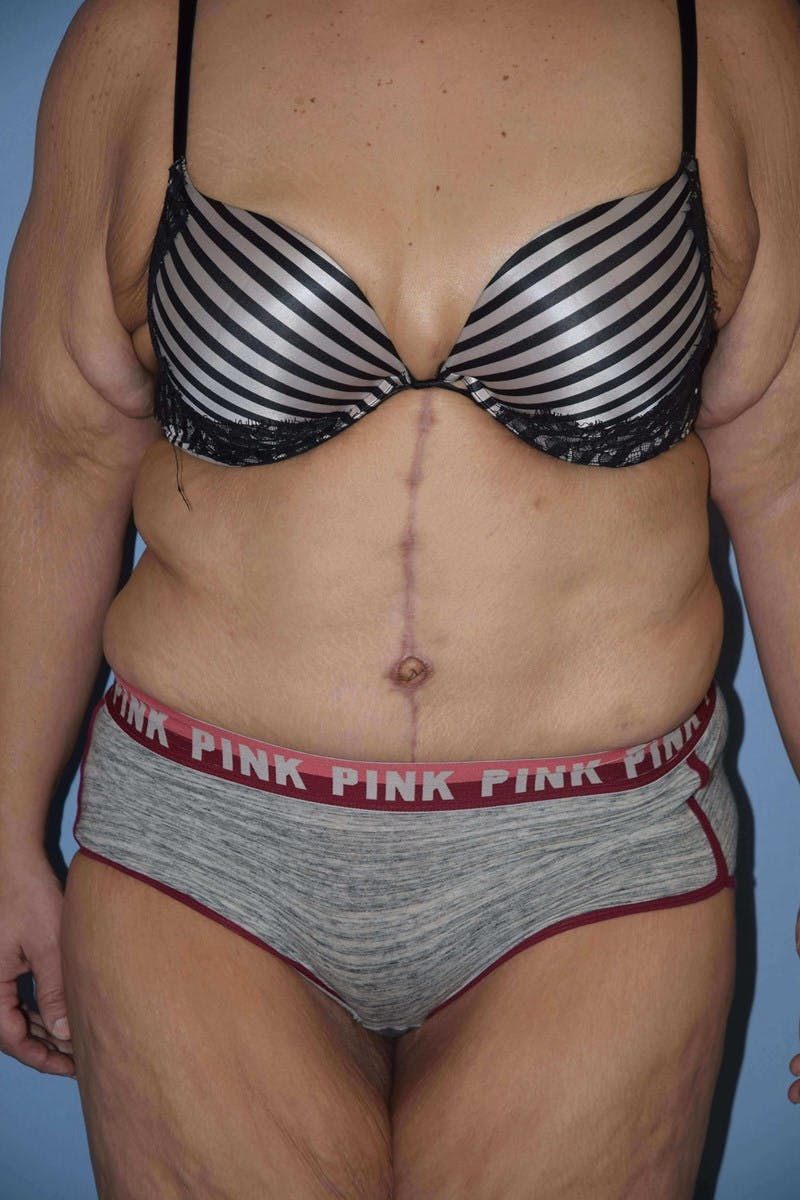 After Weight Loss Surgery Gallery - Patient 14281496 - Image 2