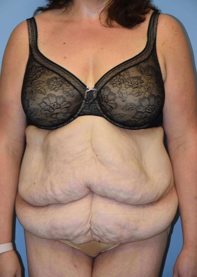 After Weight Loss Surgery Gallery - Patient 6389628 - Image 1