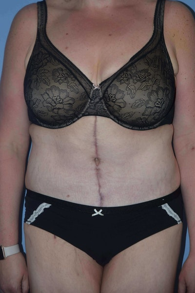 After Weight Loss Surgery Gallery - Patient 6389628 - Image 2