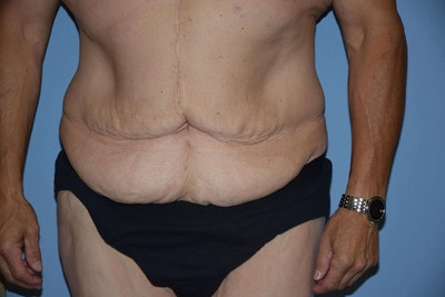 After Weight Loss Surgery Gallery - Patient 6389629 - Image 1
