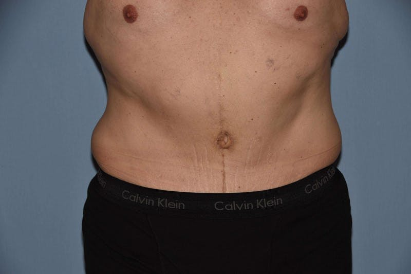 After Weight Loss Surgery Gallery - Patient 6389629 - Image 2