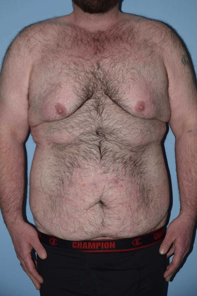 After Weight Loss Surgery Gallery - Patient 6389631 - Image 1