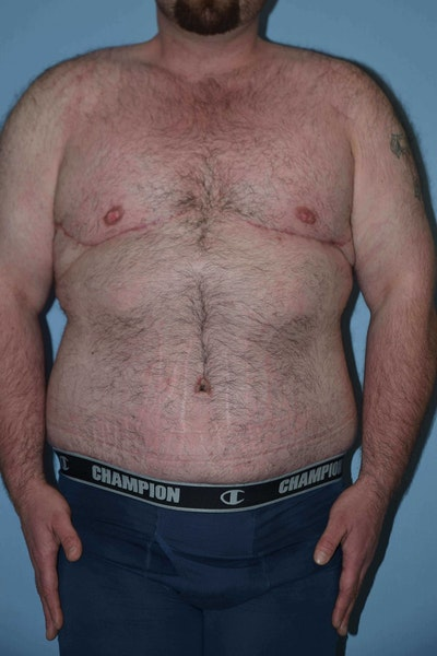 After Weight Loss Surgery Gallery - Patient 6389631 - Image 2