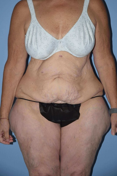 After Weight Loss Surgery Gallery - Patient 6389632 - Image 1