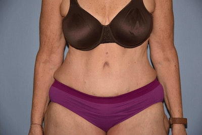 After Weight Loss Surgery Gallery - Patient 6389632 - Image 2