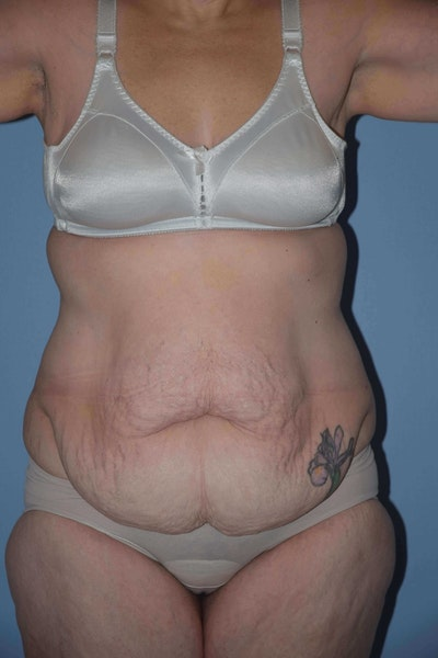 After Weight Loss Surgery Gallery - Patient 6389634 - Image 1