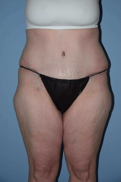 After Weight Loss Surgery Gallery - Patient 6389634 - Image 2