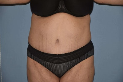 After Weight Loss Surgery Gallery - Patient 6389638 - Image 2