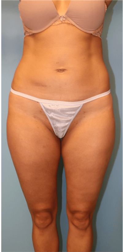 Liposuction Gallery - Patient 6389639 - Image 1
