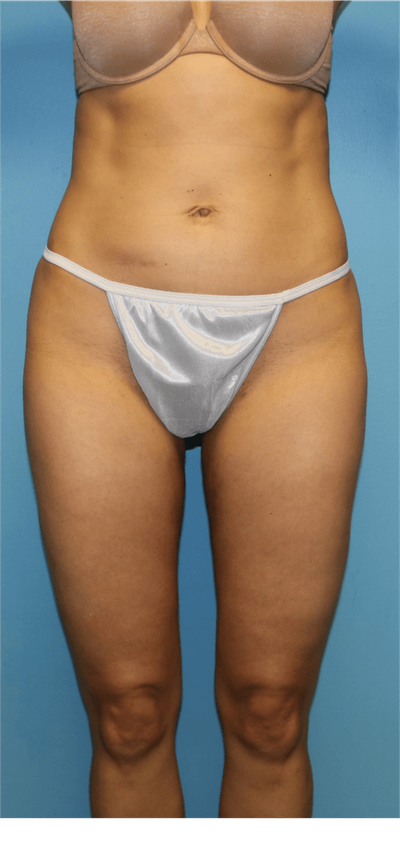 Liposuction Gallery - Patient 6389639 - Image 2