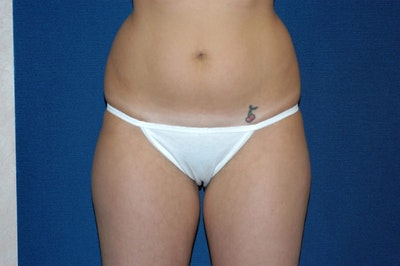 Liposuction Gallery - Patient 6389642 - Image 1