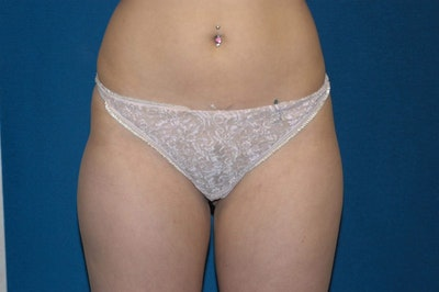 Liposuction Gallery - Patient 6389642 - Image 2