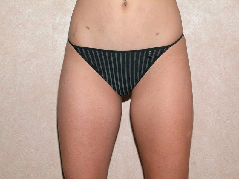 Liposuction Gallery - Patient 6389644 - Image 2