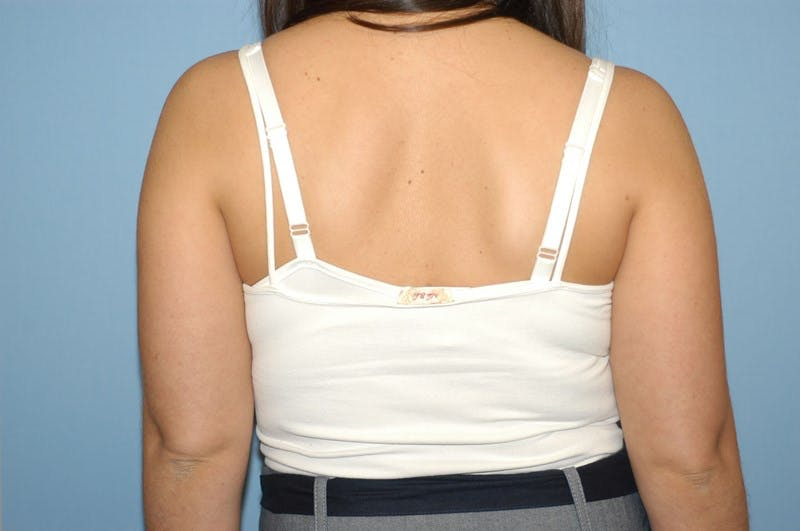 Liposuction Gallery - Patient 6389645 - Image 1