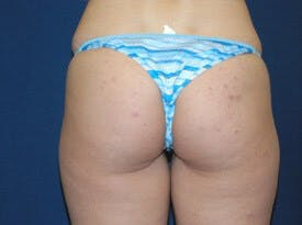 Liposuction Gallery - Patient 6389646 - Image 1