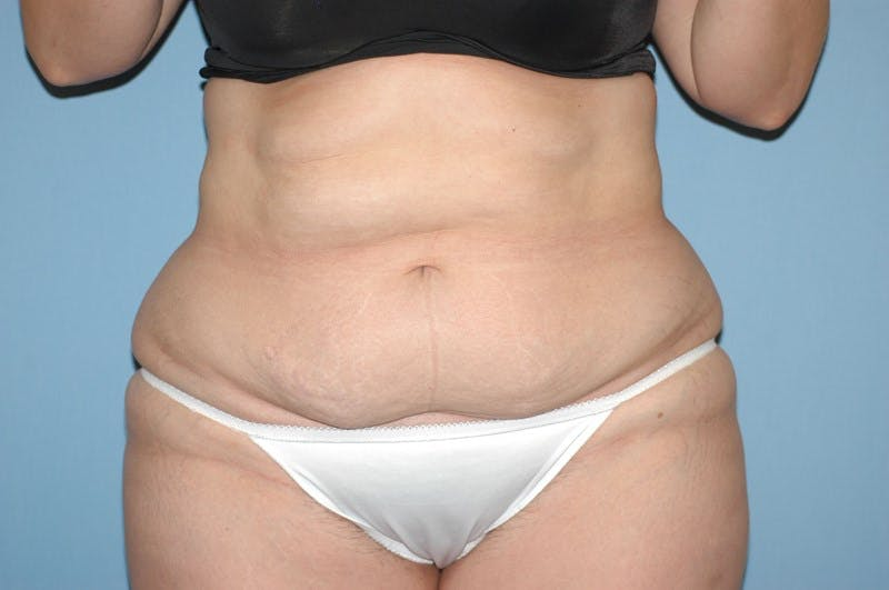 Liposuction Gallery - Patient 6389651 - Image 1