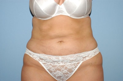 Liposuction Gallery - Patient 6389651 - Image 2