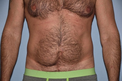 Liposuction Gallery - Patient 6389653 - Image 1