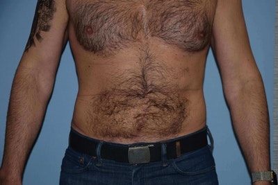 Liposuction Gallery - Patient 6389653 - Image 2